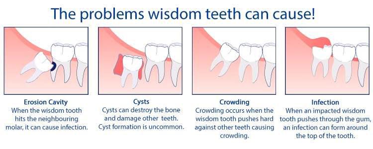 Problems-with-Wisdom-Teeth - Copy