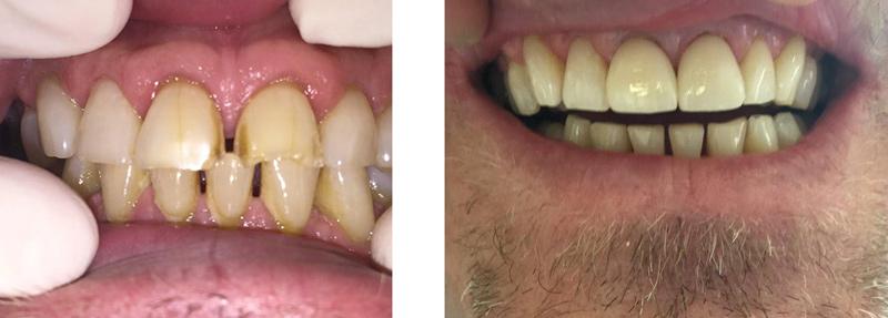 Veneer-before-after