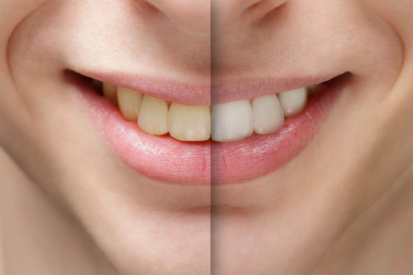 Whitening-b4-after