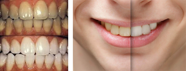 Whitening-b4-after-two